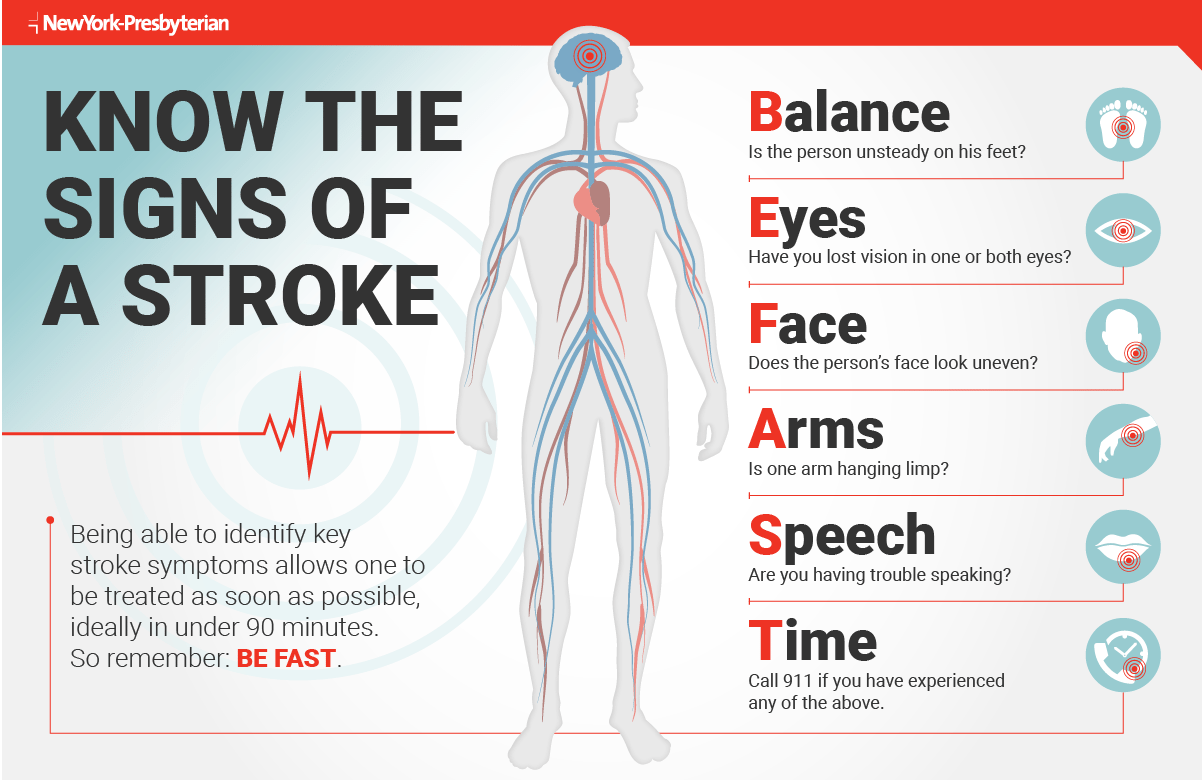 Infographic outlining how to know the signs of stroke