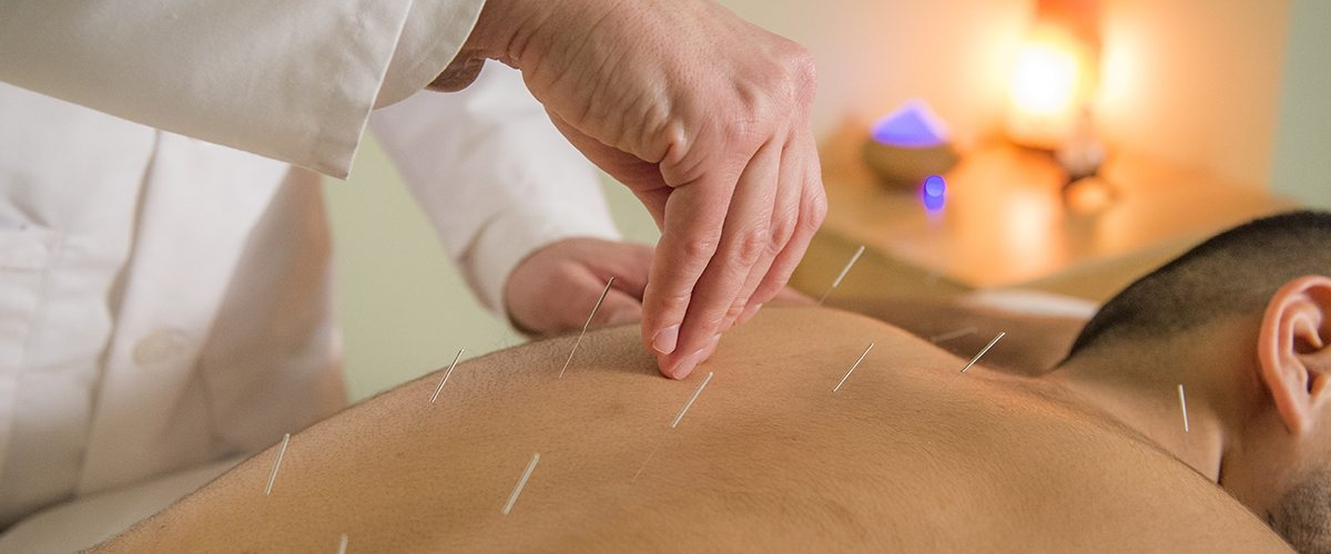 A man receiving acupuncture on his back