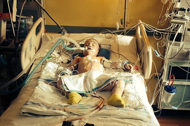Amazing Patient Jack Foley at two and a half years old, after his third open-heart surgery