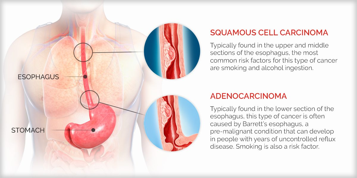 Infographic identifying squamous cell carcinoma and adenocarcinoma