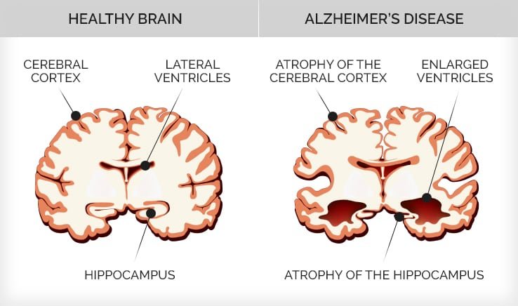 Infographic depicting the difference between a healthy brain and one with Alzheimer's disease