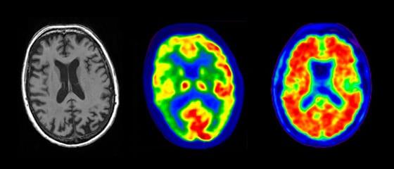 7 Tips to Help Prevent Alzheimer's Disease