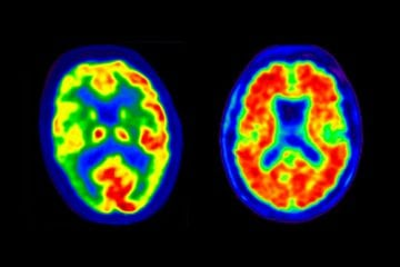 MRI images of a human brain