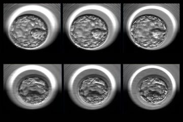 Two examples of human embryos at the blastocyst stage photographed at multiple focal depths