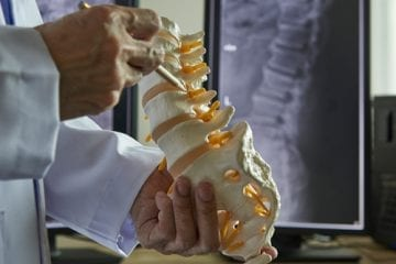A model of the human spine