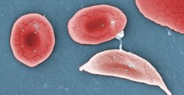 Can Gene Therapy Cure Sickle Cell Disease?
