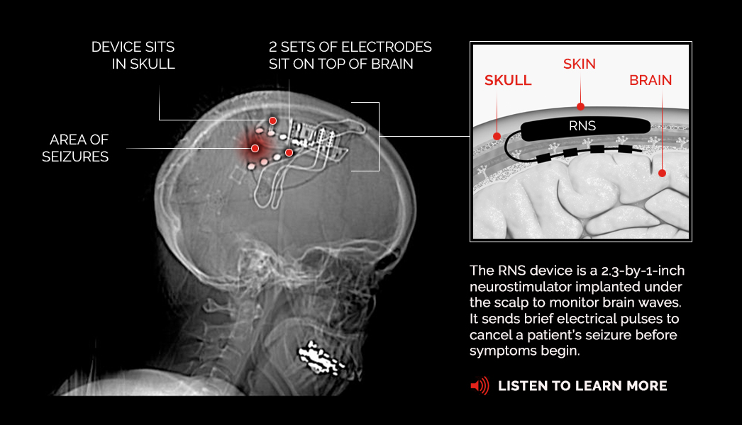 Diagram of responsive neurostimulation device used for treating epileptic seizures.