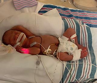 NICU baby Jamie Coleman